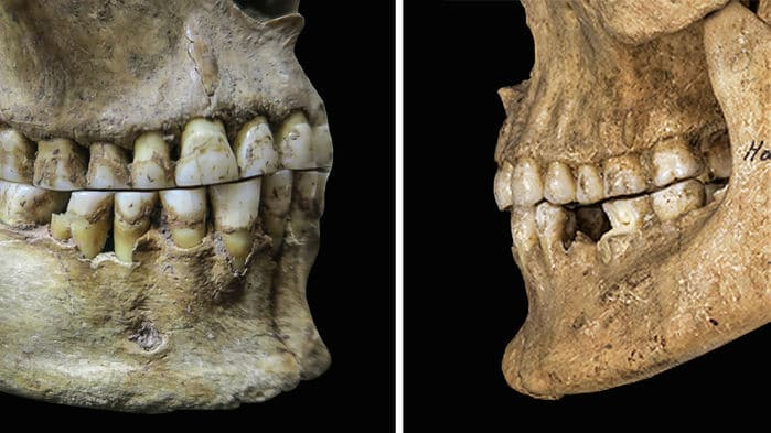 Ancient switch to soft food gave us an overbite—and the ability to pronounce 'f's and 'v's